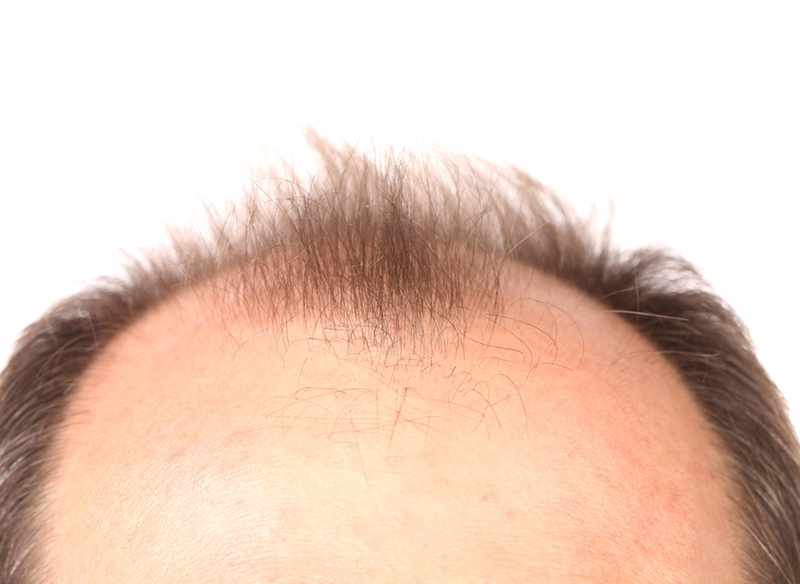 The image above would fit into the androgenetic alopecia category because it is progressive hair loss.