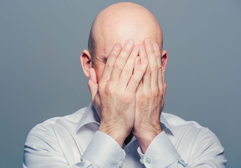 Balding men often experience symptoms of depression and anxiety.