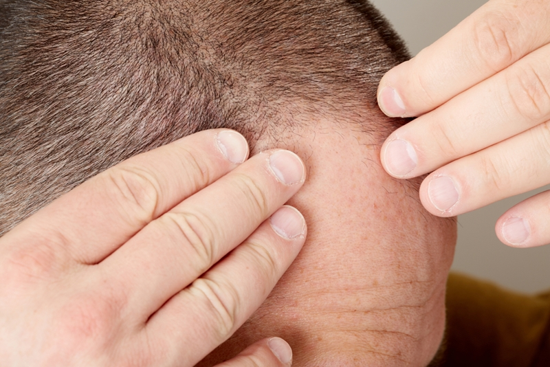 Sudden hair loss could be the result of a drug reaction or infection.
